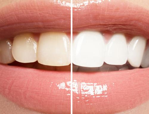 Todo lo que debes saber sobre los blanqueamientos dentales