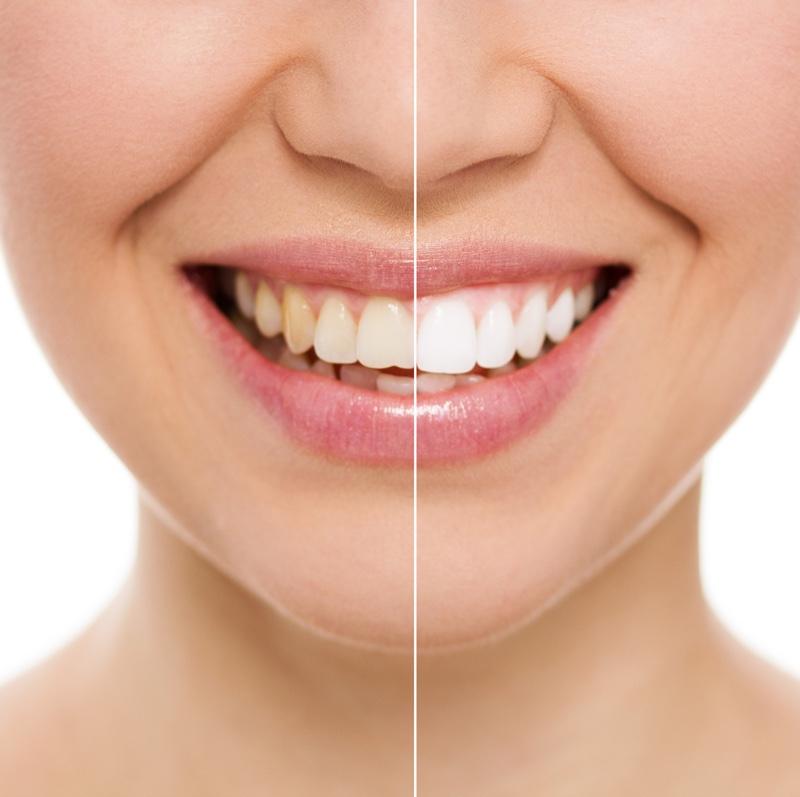 blanqueamiento dental alicante