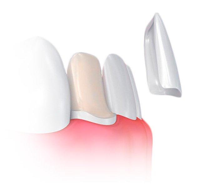 carillas dentales alicante