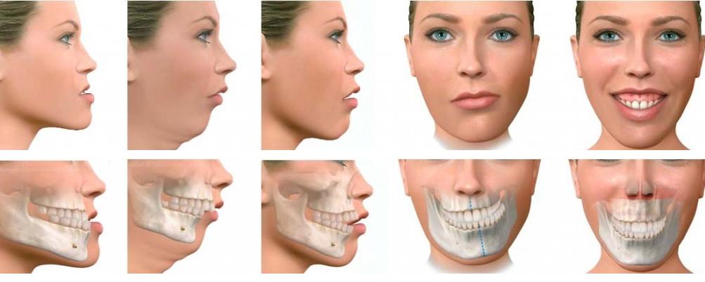correcciones mandíbula con ortodoncia
