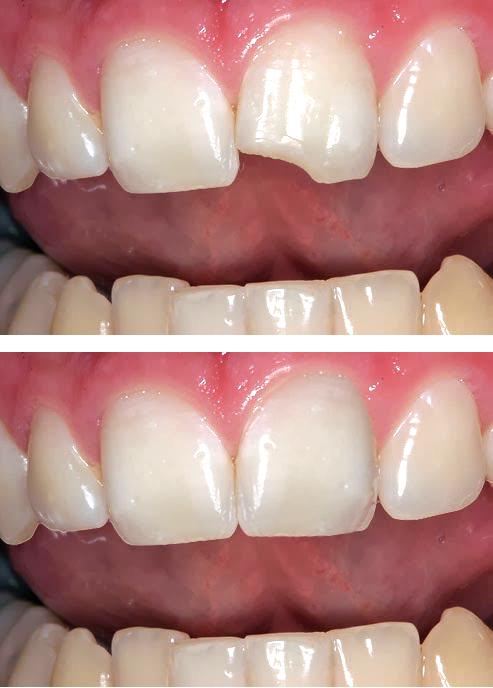 diente reconstruido