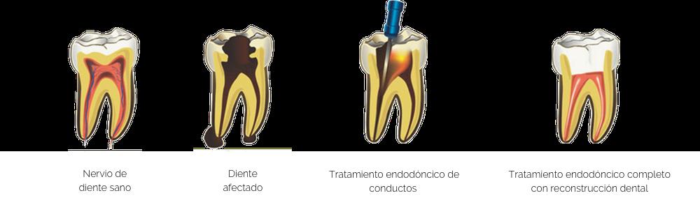 tratamiento endodóncico