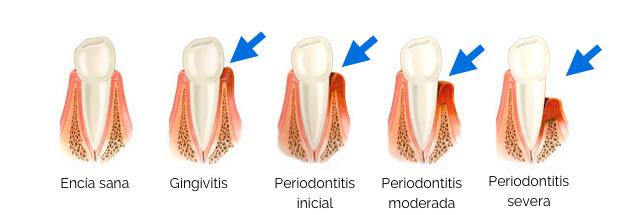 explicacion periodoncia, gingivitis y enfermedad de las encías