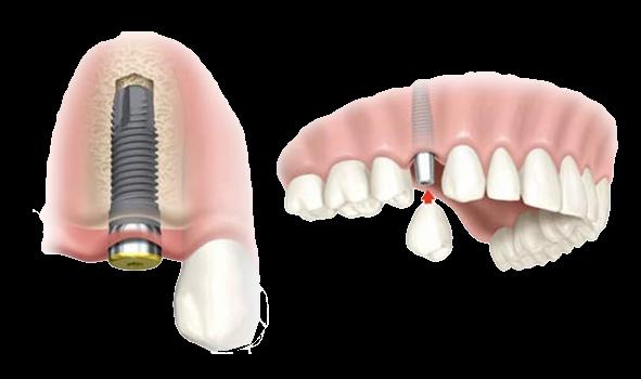 injerto de hueso para implantes dentales