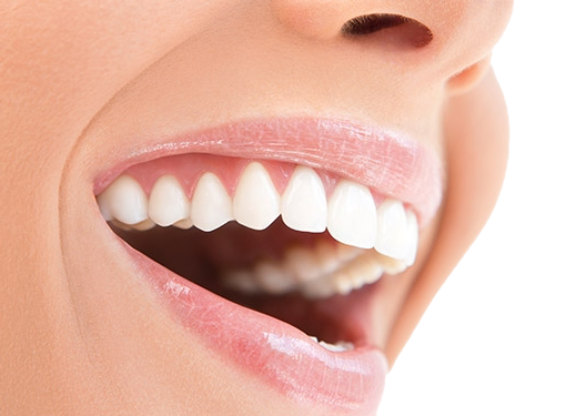 limpieza dental alicante