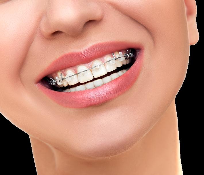 ortodoncia en alicante