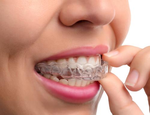 ¿Cómo funciona una ortodoncia Invisible?