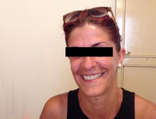 La importancia de la Sonrisa – caso de éxito de una de nuestras pacientes