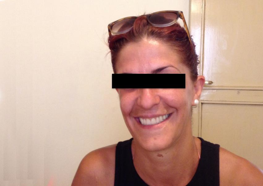 sonrisa de una de nuestras pacientes