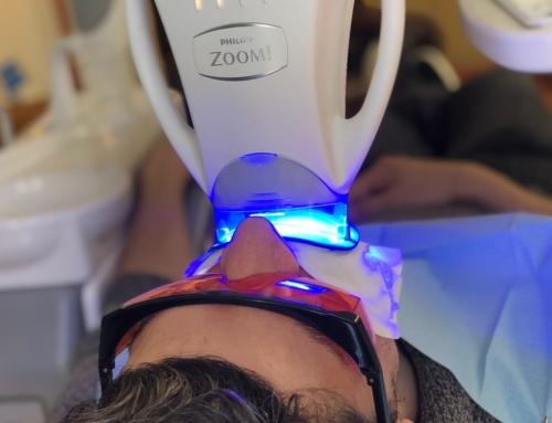 Blanqueamientos dentales de éxito