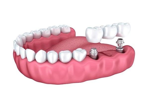 implante dental en alicante