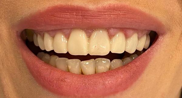 colocación de las carillas dentales